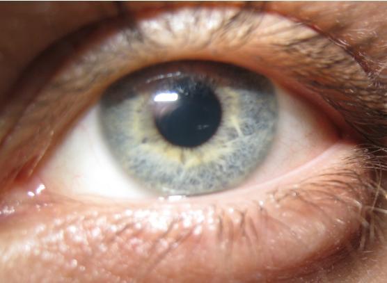 hazel-dark-blue-eyes